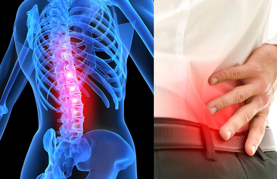 Spinal Stenosis Symptoms | Spine Works Institute