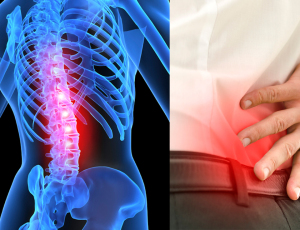 Spinal Stenosis Symptoms | Spine Works Institute